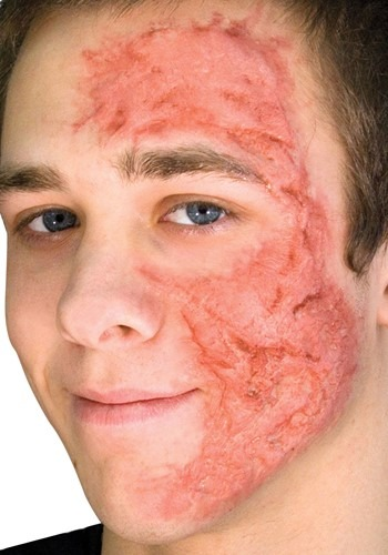 Burn Scar Applique